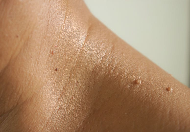 Skin Tag Removal at Harpenden Skin Clinic Image